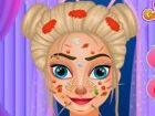 Ganz plötzlich Königin Elsa bekam eine Hautal...
